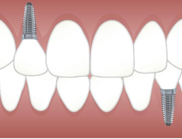 Especialistas en implantes dentales en Quintana, Ventas y Ciudad lineal