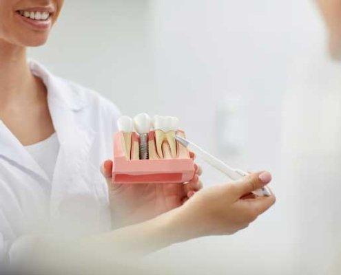 Implantes con poco hueso en Ventas