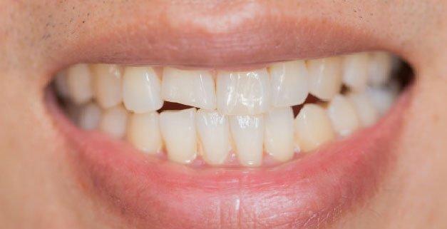 La fractura dental